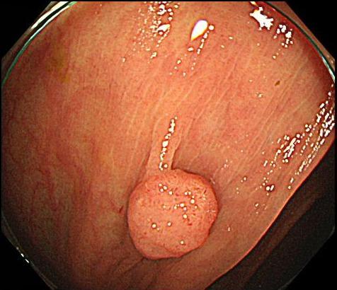 上行結腸のポリープです