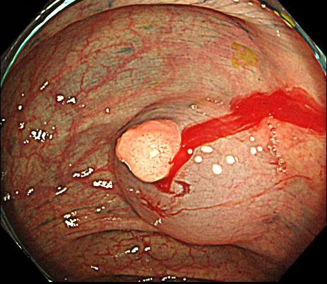 ポリープの粘膜下に食塩水を注入したところです