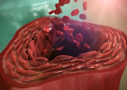 性 血小板 性 病 減少 特発 紫斑